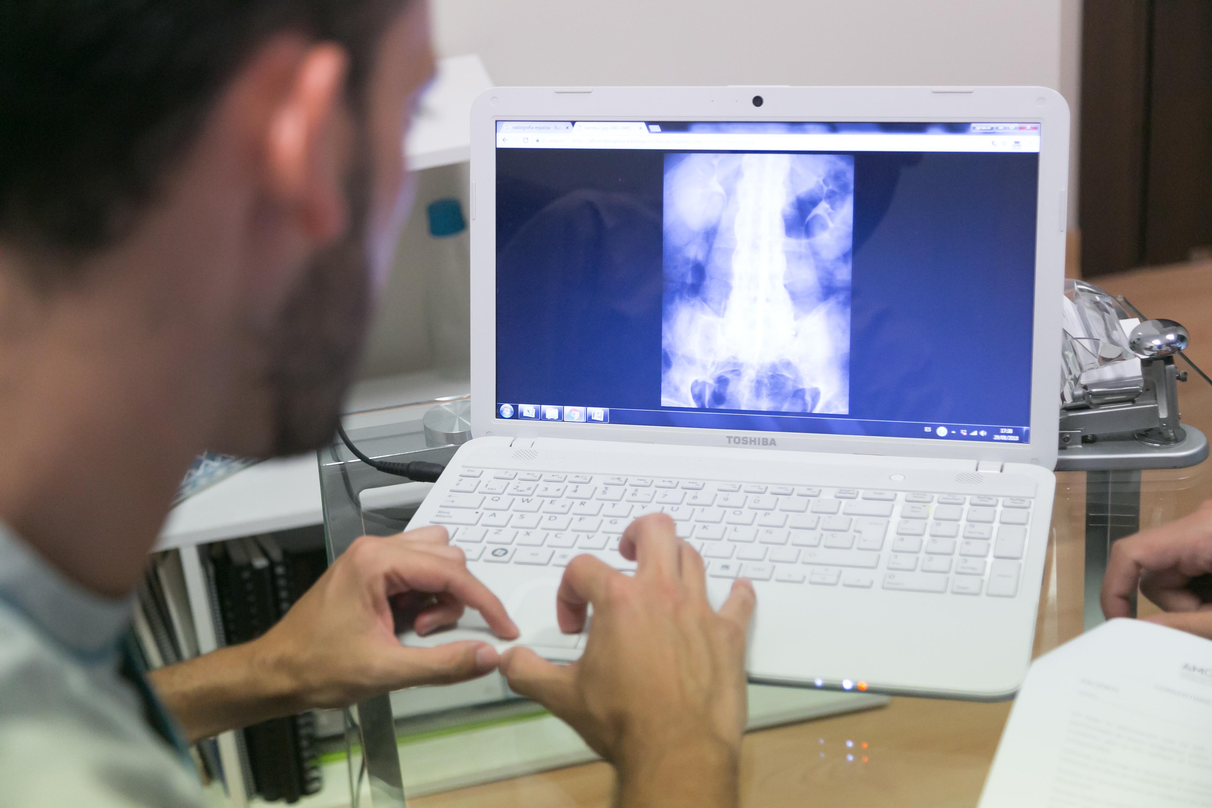 Visualización de radiografía